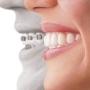 Clinica dental los Shyris. Dental Best. Diseñamos su sonrisa